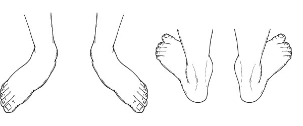 Pediatric and Adult Flatfoot